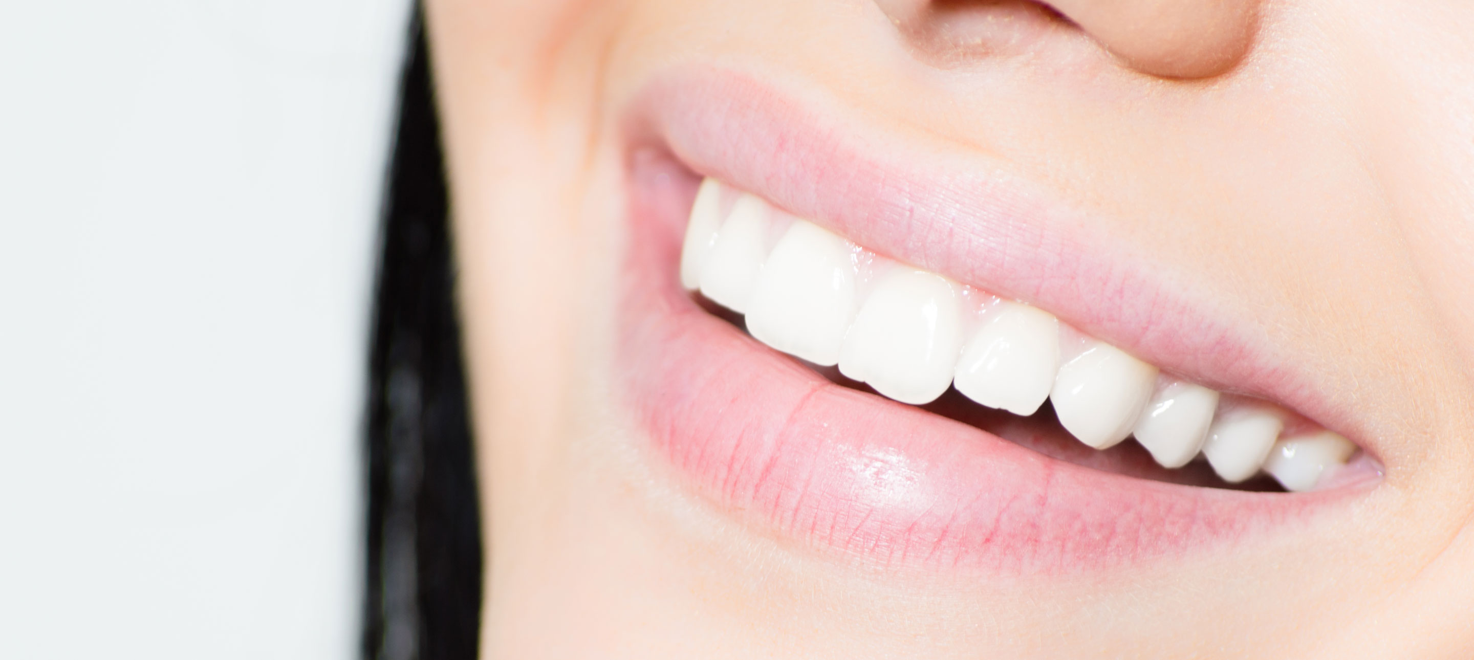 How We Do Better Smiles—The Majeroni Smile Assessment