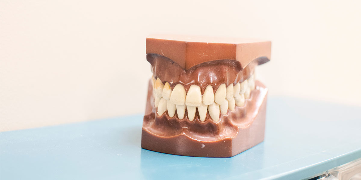 Invisalign and Braces: Low Risk, High Reward